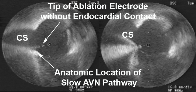 Figure 2  Radial ICE Guidance during AVNRT Ablation of the Slow AV Node Pathway.